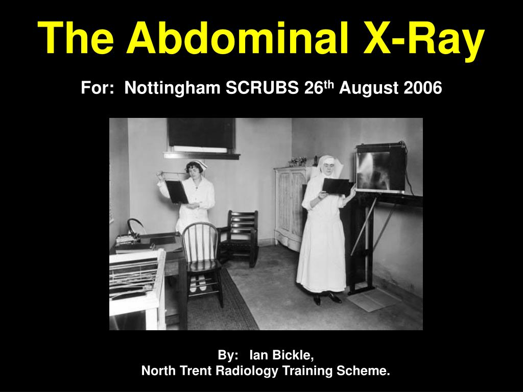 the abdominal x ray l.